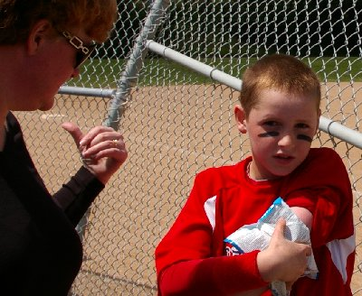 Grandson Riley icing down his sore arm at Heidelberg Park in Tacoma, Washington.